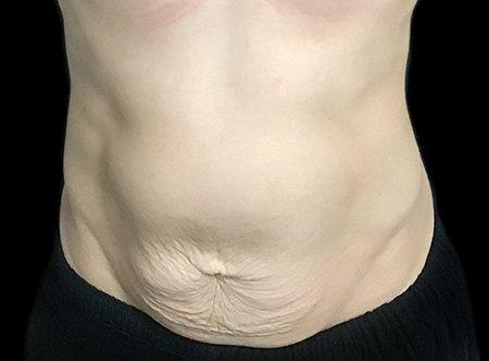 Post Pregnancy Tummy Tuck Dr Sharp VB 1