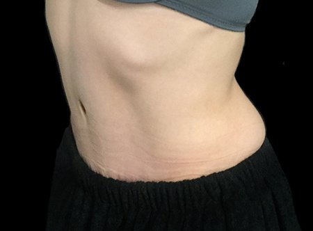 Post Pregnancy Tummy Tuck Dr Sharp VB 4