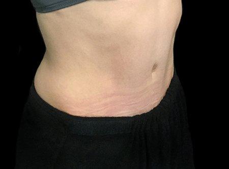 Post Pregnancy Tummy Tuck Dr Sharp VB 5
