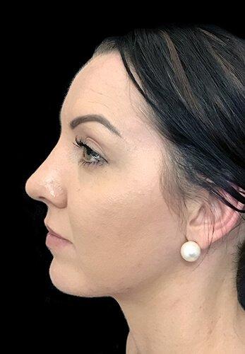 Rhinoplasty Surgeon TB 4