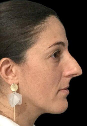 Rhinoplasty Surgery Before EC