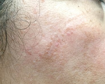 Scar Treatment With Fraxel Brisbane After
