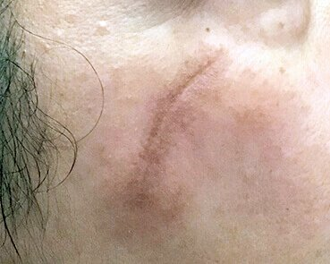 Scar Treatment With Fraxel Brisbane Before