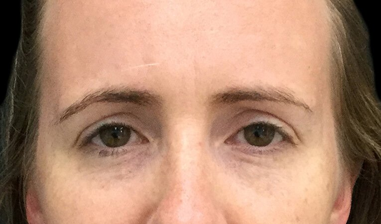 Stress Lines Wrinkle Injections Brisbane 1 MB