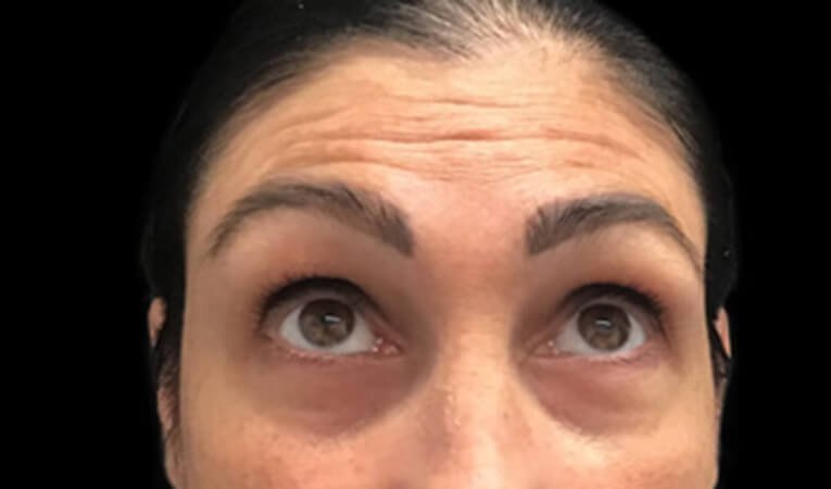Stress Lines Wrinkle Injections Frown Lines 1