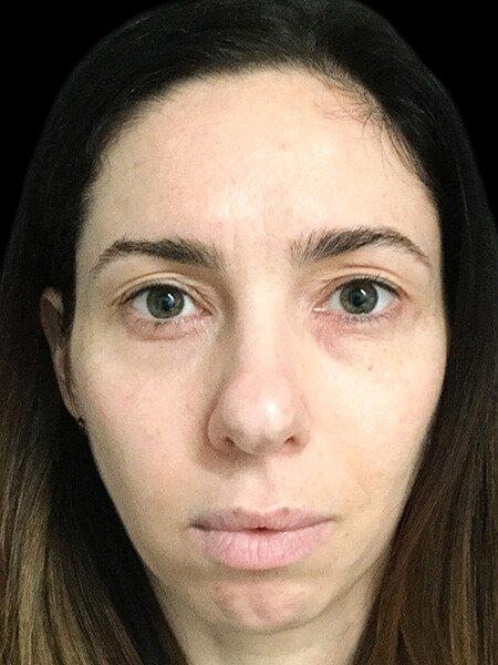 Tear Trough And Botox Brisbane1
