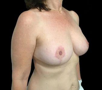 Breast Reduction Surgeon Brisbane And Ipswich Dr David Sharp KC4