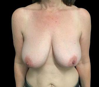 Breast Reduction Surgeon Brisbane And Ipswich Dr David Sharp Kc1