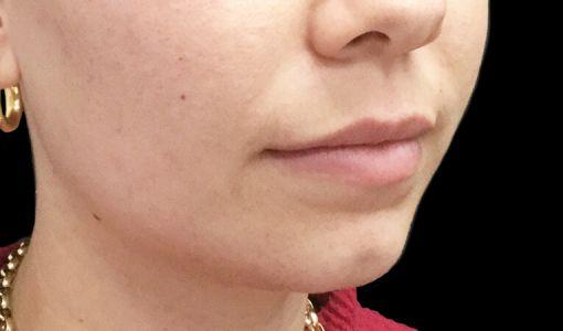 Brisbane Lip Filler Clinic JM 1