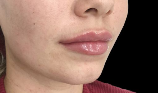 Brisbane Lip Filler Clinic JM 2