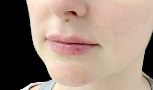 Lip Dermal Filler Clinic Ipswich Brisbane JC 2