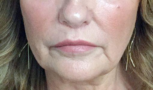 Lip Lift Surgeon Brisbane Ipswich Before And After JC 2