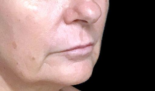 Lip Lift Surgeon Brisbane Ipswich Before And After JC 3