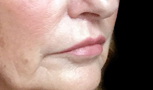 Lip Lift Surgeon Brisbane Ipswich Before And After JC 4
