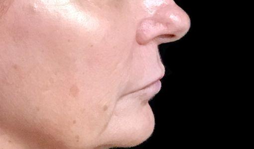 Lip Lift Surgeon Brisbane Ipswich Before And After JC 5