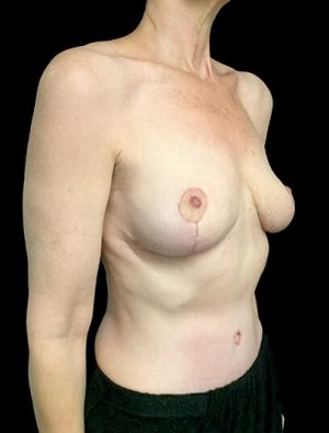 Mastopexy Abdominoplasty Mummy Makeover Brisbane Surgeon PJ 4