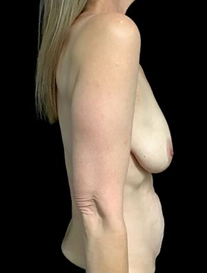 Mastopexy Abdominoplasty Mummy Makeover Brisbane Surgeon PJ 5