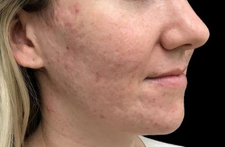 Skin Peels Acne Anti Ageing Therapist Brisbane Ipswich JC 2
