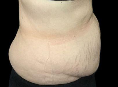 Abdominoplasty 60 Something Female Dr Sharp KB 5