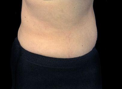 Abdominoplasty 60 Something Female Dr Sharp KB 6