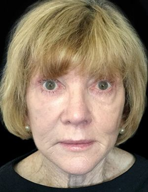 Facelift With Dr Sharp RI 1