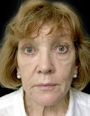 Facelift With Dr Sharp RI 2