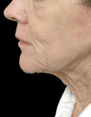 Facelift With Dr Sharp RI 5