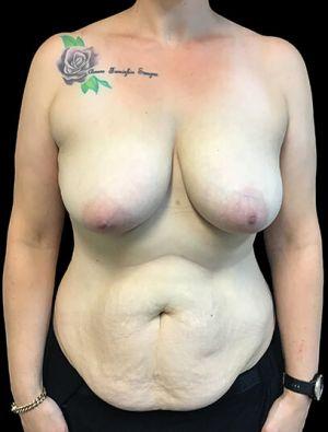 Mummy Makeover Breast Surgery Tummy Tuck LW 1