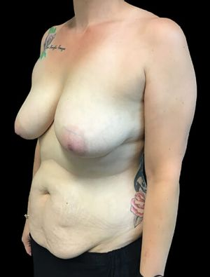 Mummy Makeover Breast Surgery Tummy Tuck LW 5