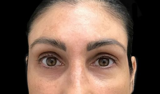 Stress Lines Wrinkle Injections Frown Lines After 2