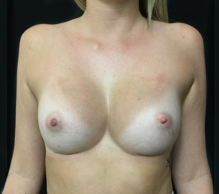 Ipswich before and after photos Dr Sharp surgery