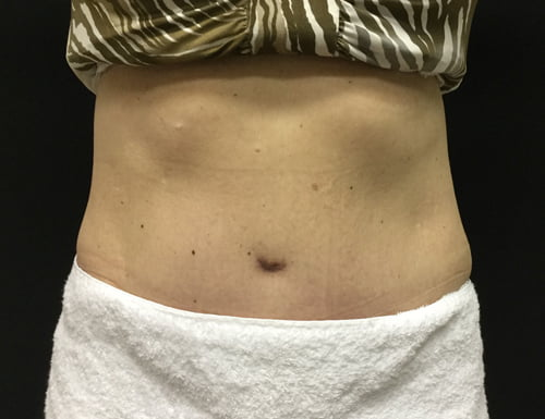 before and after surgeon Dr Sharp tummy tuck review