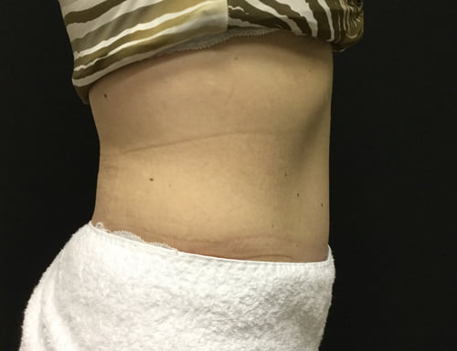 reviews Dr Sharp surgeon abdominoplasty before and after Brisbane