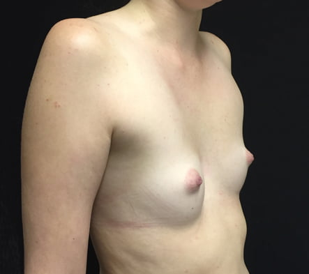 Breast augmentation results surgeon Brisbane