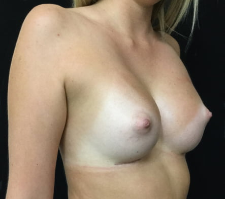 Breast augmentation surgery Brisbane surgeon