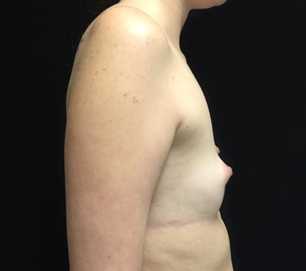 augmentation after breastfeeding Brisbane and Ipswich surgeon