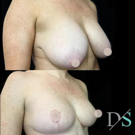 mastopexy breast reduction surgery Dr Sharp Brisbane