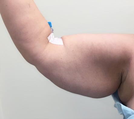 Brachioplasty arm reduction Dr David Sharp