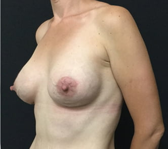 Breast augmentation mummy makeover