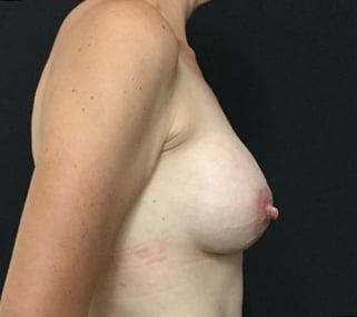 Brisbane breast augmentation review surgeon Dr Sharp