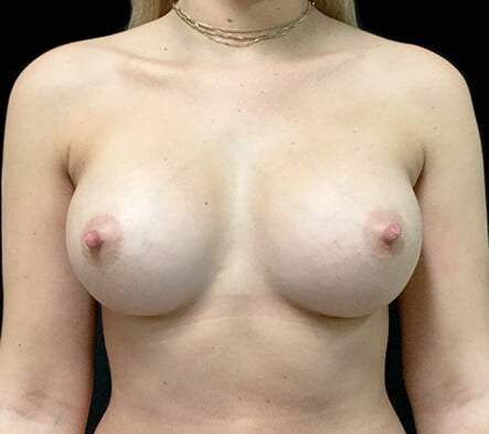 after breast augmentation surgery Greenslopes