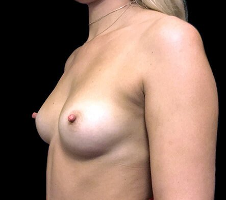 Before breast augmentation surgery with Dr Sharp