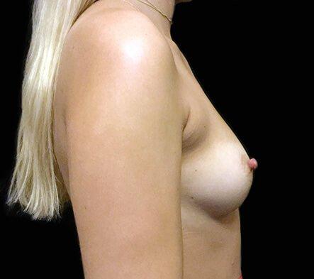 Greenslopes Private breast surgeon
