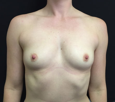 Breast augmentation review Brisbane and Ipswich
