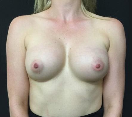 photos Dr Sharp breast augmentation