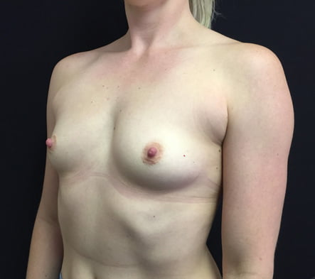 boob job Brisbane and Ipswich before and after photos