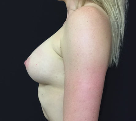 breast augmentation Brisbane which surgeon