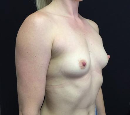 Breast augmentation Brisbane and Ipswich reviews