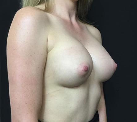 Dr David Sharp breast augmentation