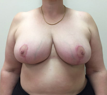 Breast reduction Ipswich and Brisbane reviews
